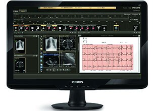 patients' cardiograph monitored on Philips CVIS informatics