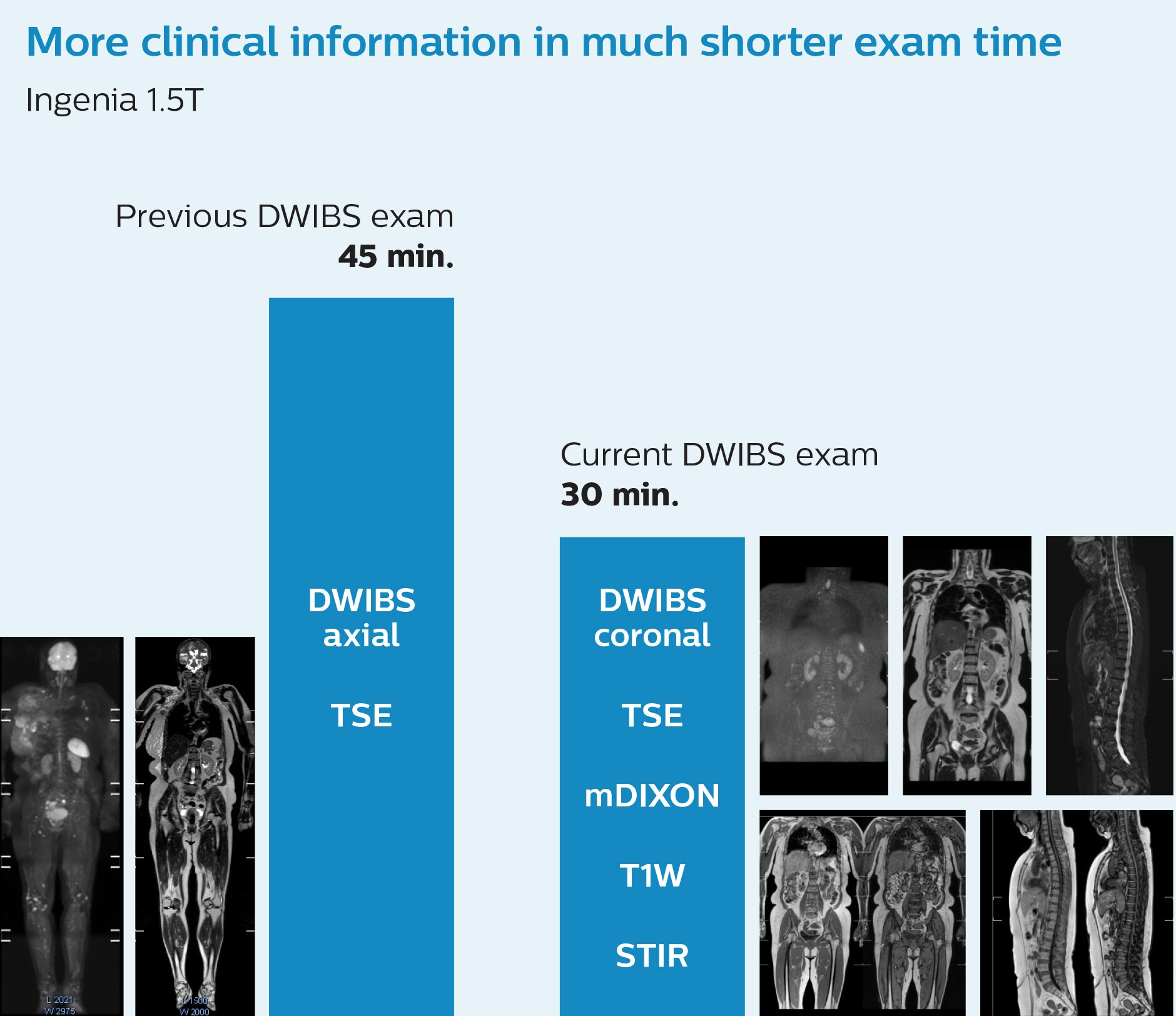 faster whole body mri kawasaki