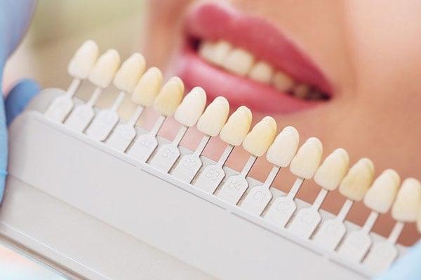 dieta alba pentru dinti